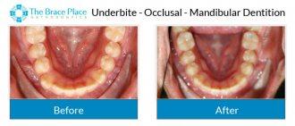 Underbite - Occlusal Photo of Mandibular Dentition
