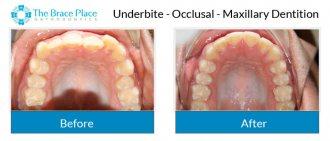 Underbite - Occlusal Photo of Maxillary Dentition