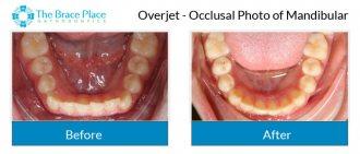 Overjet - Occlusal Photo of Mandibular