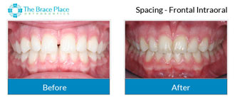 Spacing - Frontal Intraoral