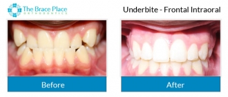 Underbite - Frontal Intraoral