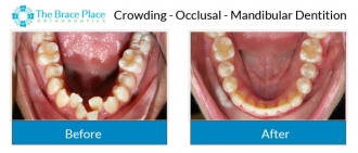 Crowding - Occlusal Photo of Mandibular Dentition