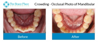 Crowding - Occlusal Photo of Mandibular