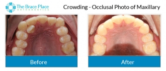 Crowding - Occlusal Photo of Maxillary