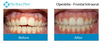 Openbite - Frontal Intraoral