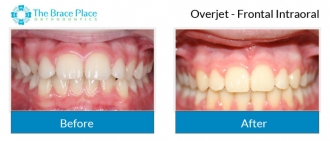 Overjet - Frontal Intraoral