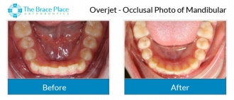 Overjet - Occlusal Photo of Mandibular
