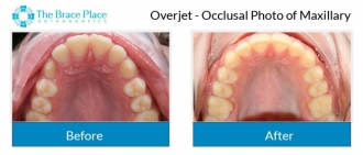 Overjet - Occlusal Photo of Maxillary
