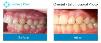 Overjet - Left Intraoral