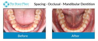 Spacing - Occlusal Photo of Mandibular Dentition