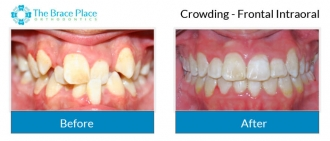 Crowding - Frontal Intraoral