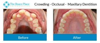 Crowding - Occlusal Photo of Maxillary Dentition
