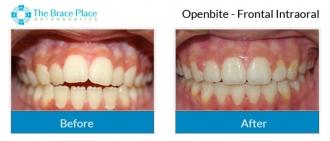 Openbite - Frontal Intraoral