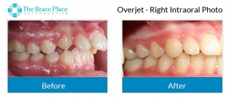 Overjet - Right Intraoral